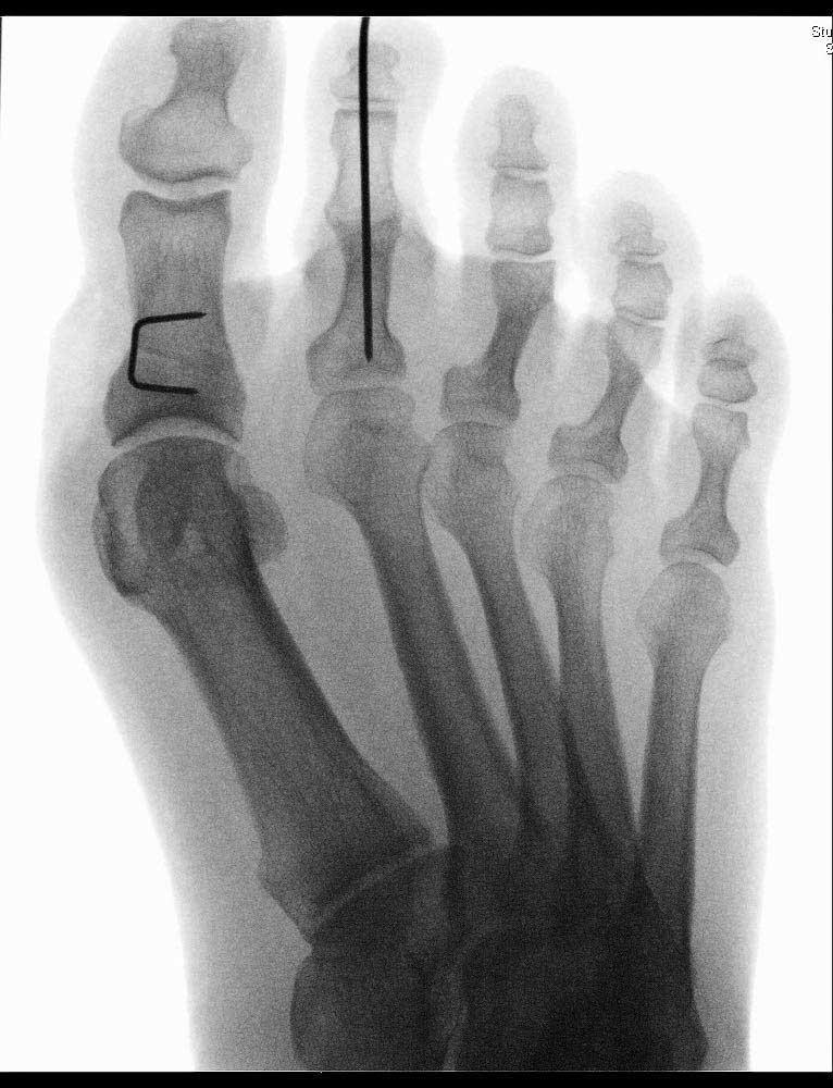 hammer-toe-2